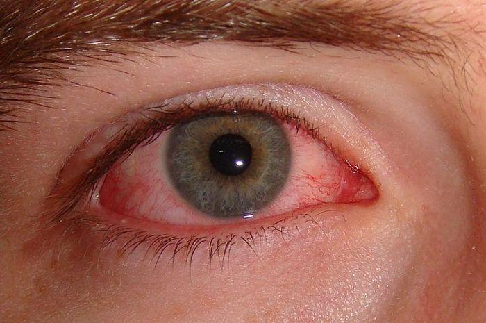 Benarkah penyakit mata merah bisa menular lewat tatapan mata?