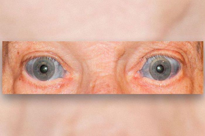 Bagian Putih Pada Mata Kakek Ini Berubah Warna Menjadi Biru!