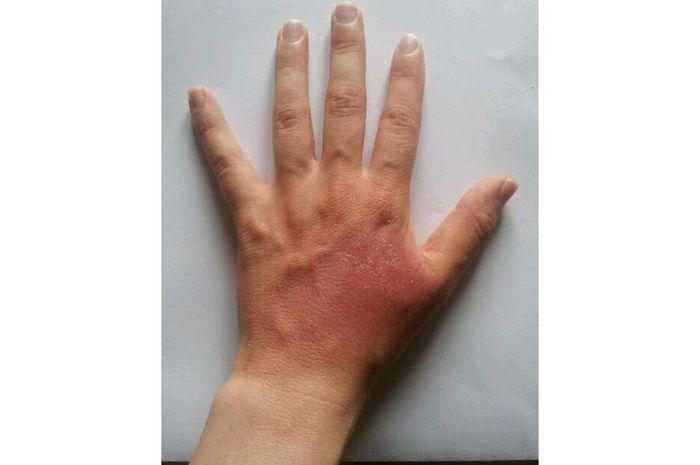 Kalau luka bakar cukup parah, segeralah ke dokter.