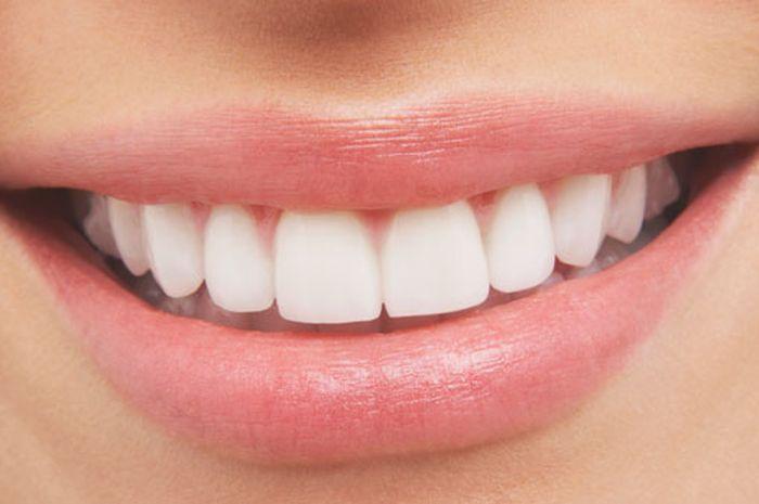 5 Bahan Alami Biar Gigi Sehat Kaya Punya Artis Salah Satunya Makan