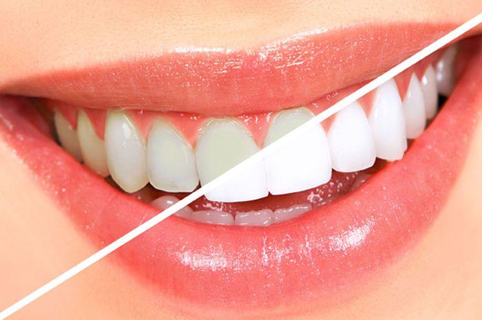 Murah Meriah Ini Tips Sederhana Untuk Bikin Gigimu Tampak Putih