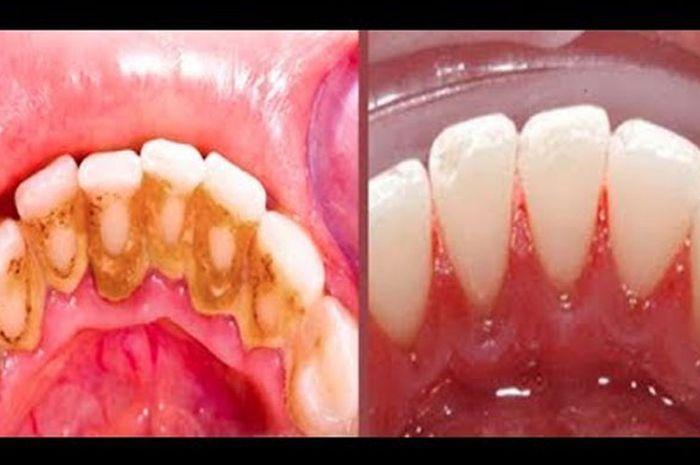 Tak Perlu Ke Dokter Gigi Berikut 3 Cara Alami Hilangkan Karang Gigi
