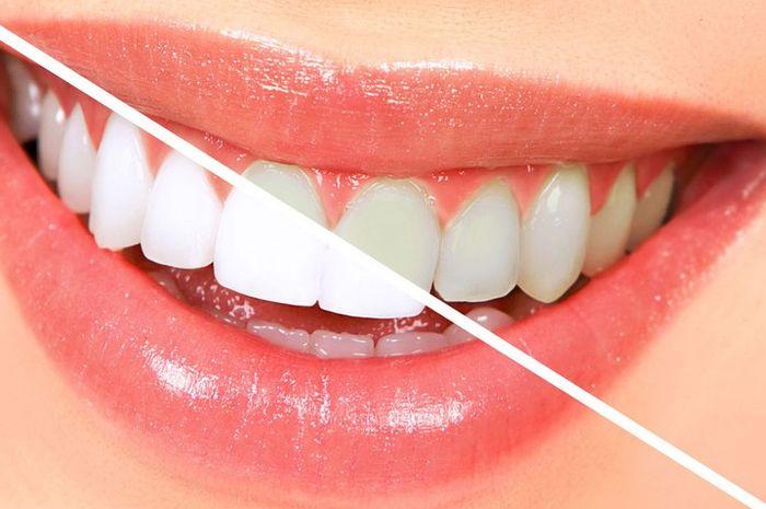 Plus Minus Metode Memutihkan Bleaching Gigi Yang Perlu Kamu Tahu