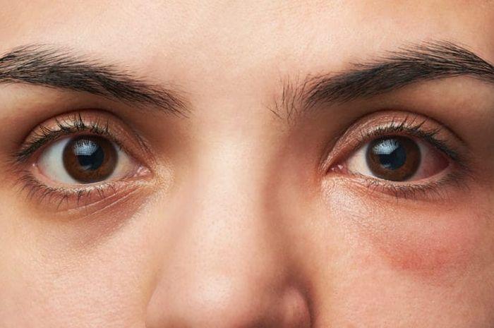 Hasil gambar untuk mata yang sehat