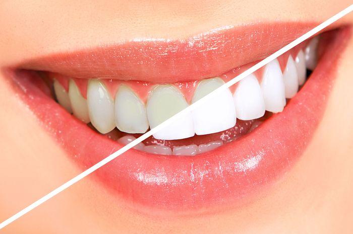 Nggak Usah Mahal Veneer Gigi Cara Ini Bikin Gigi Putih Secara