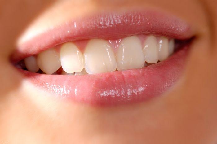 Senyum Tanpa Gigi Kuning Semua Halaman Intisari Grid Id