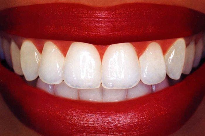 Obat Alami Memutihkan Gigi Semua Halaman Intisari Grid Id