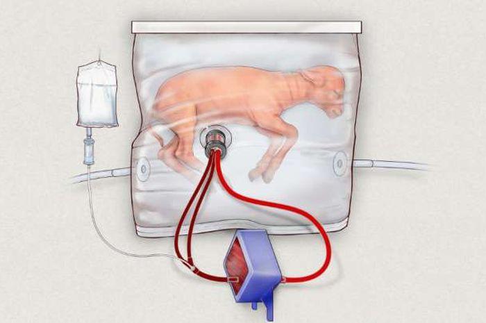Anak kambing dalam rahim buatan