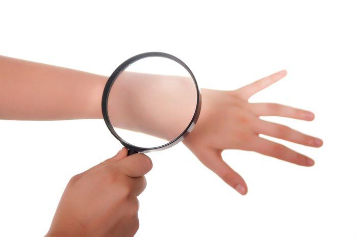 Jangan dianggap remeh, kondisi kulit bisa menjadi sinyal masalah kesehatan lainnya