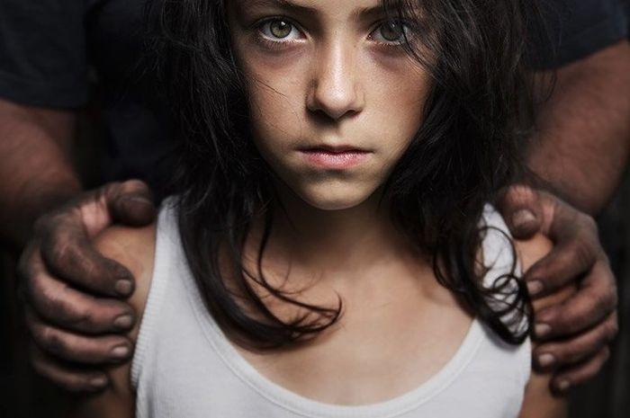 Terganggu tidaknya perkembangan anak tergantung kesan eksploitasi yang ditinggalkan