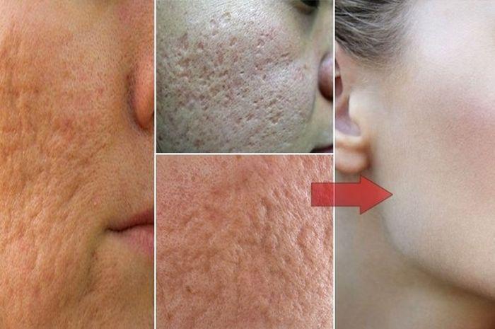 Pori-pori kulit yang membesar