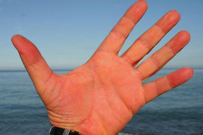 Telapak tangan yang terus memerah bisa jadi merupakan indikasi penyakit hati atau liver.