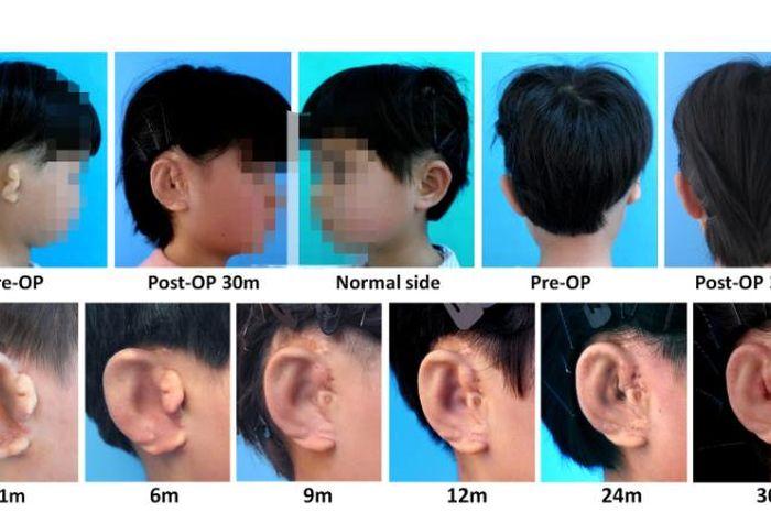 Ilmuwan China berhasil menumbuhkan telinga untuk anak yang cacat pendengaran.