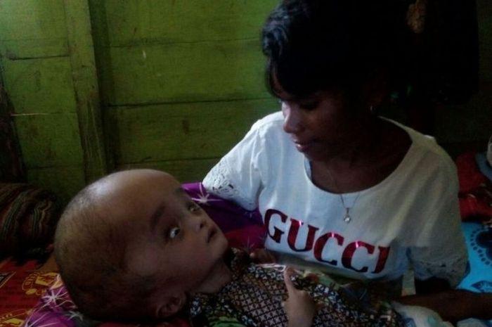 Yanti Gutanjala (22) menggendong bayinya Hofni Indro Gutanjala yang menderita hidrosefalus di rumahnya di Kelurahan Siwalima, Dobo, Kabipaten Kepulauan Aru, Maluku, Selasa (6/2/2018) lalu.