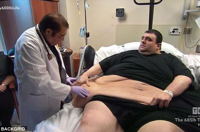 Pria dengan obesitas meninggal saat menjalani perawatan penurunan berat badan