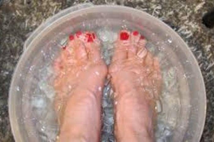 Merendam kaki dalam air es.