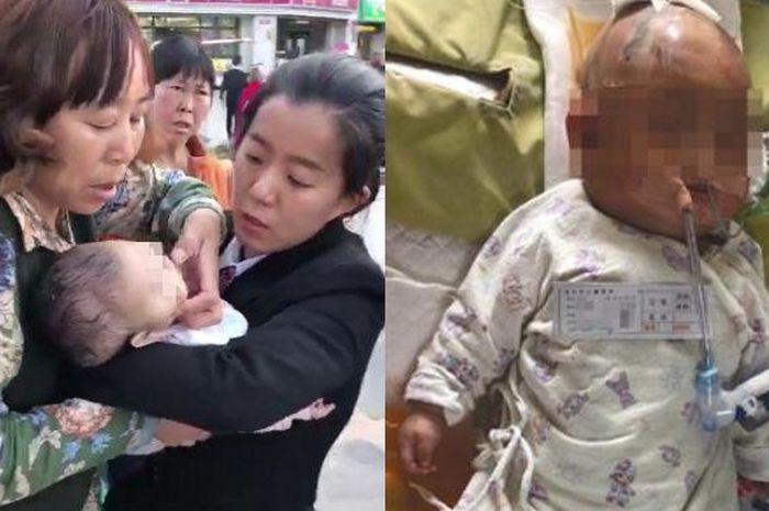 Bayi ini jadi koma karena tertimpa sebutir apel.