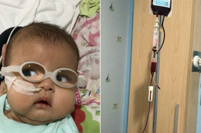 Ibran harus menjalani transfusi darah