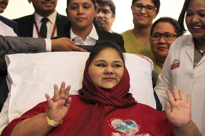 Awas, Obesitas Pada Perempuan Mengundang Penyakit Mematikan