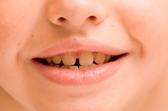 Jika Gigi Anak Berwarna Kuning Semua Halaman Nakita Id