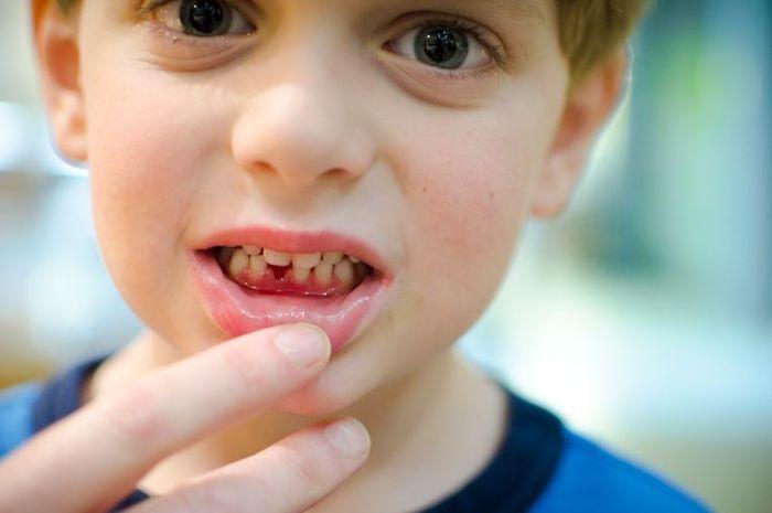 5 Kesalahan yang Menyebabkan Gigi Anak Hitam dan Rusak - Semua ... 0b461d80a4