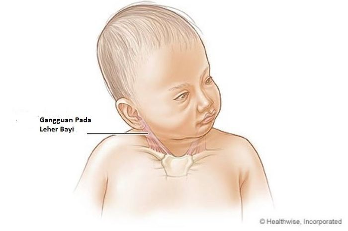 Gangguan Leher Ini Sering Dialami Bayi Semua Halaman Nakita Id