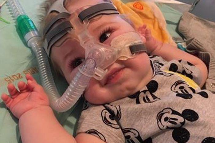 Bayi Laki-laki Ini Memiliki Kondisi Genetik Langka dengan Kebiasaannya Menjentikkan Lidah
