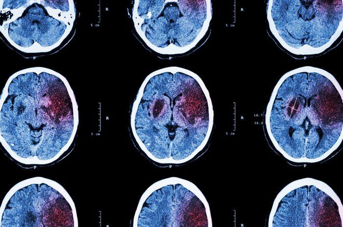 Ilustrasi stroke pada otak.