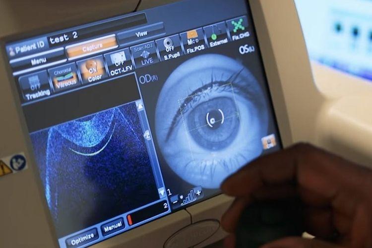 Teknologi AI Google ini Bisa Deteksi Penyakit Mata dengan Akurat
