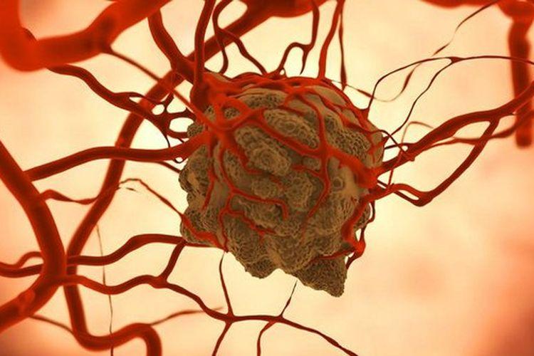 Berita Penyebab Sel Kanker Payudara Menjadi Agresif ...
