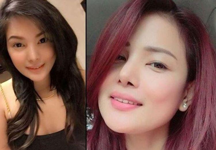 Pasca Operasi Plastik Bagian Sensitif, Wanita Cantik Ini Meregang Nyawa!