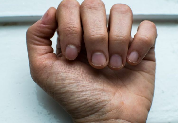 Dari Gangguan Tiroid Hingga Anemia, Begini Cara Cek Kesehatan Lewat Tangan