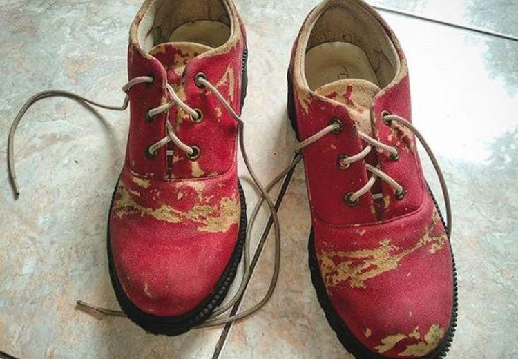 Sepatu Kesayangan Mendadak Bolong Saat Ingin Dipakai? Coba Lakukan Langkah Ini!