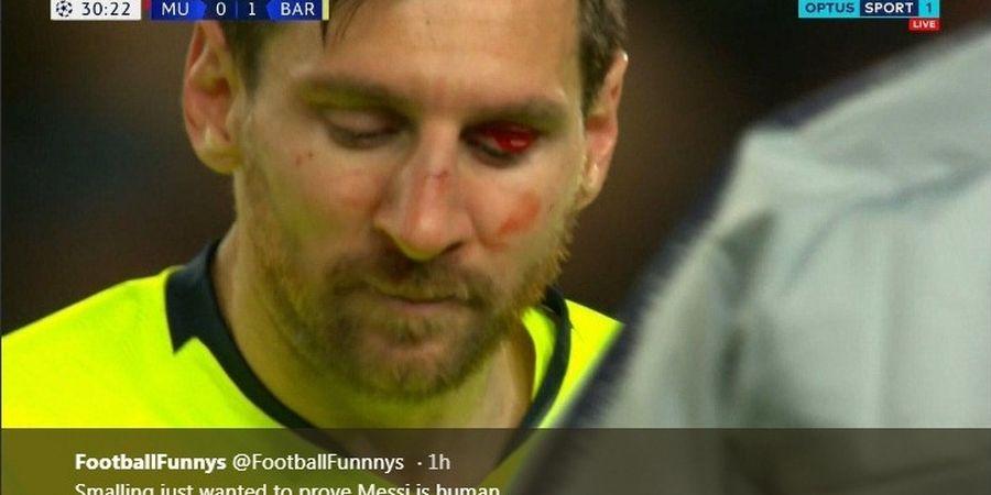 Barcelona Menang, Sergio Busquets Khawatir Hidung Lionel Messi Patah