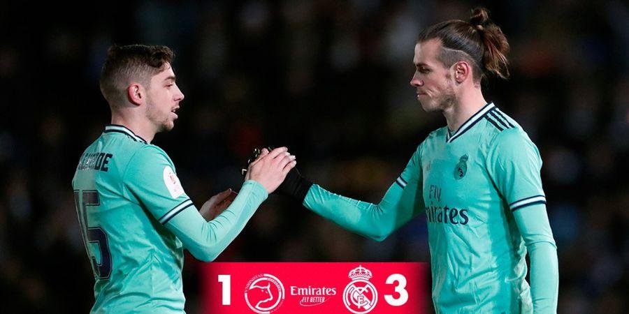 Jadi Starter Real Madrid, Gareth Bale Kembali Alami Cedera