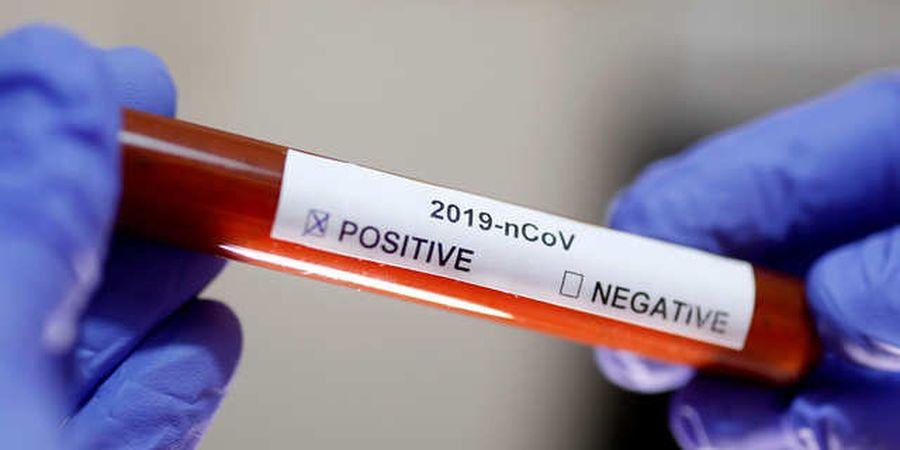 UPDATE Insan Sepak Bola Positif Virus Corona - Total 48 Kasus Positif, 3 Meninggal, 3 Sembuh