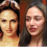 5 Artis Bollywood yang Gagal Operasi Bibir, Nomor 4 Parah Banget!
