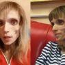 Derita Anoreksia, Perempuan Ini Malah Dapat Komentar Pedas dari Dokter