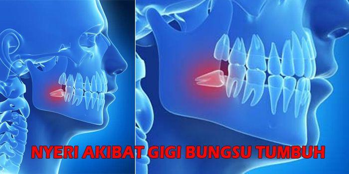 Benarkah Gigi Bungsu Tidak Memiliki Fungsi Dan Hanya Sebabkan Rasa Sakit Semua Halaman Intisari