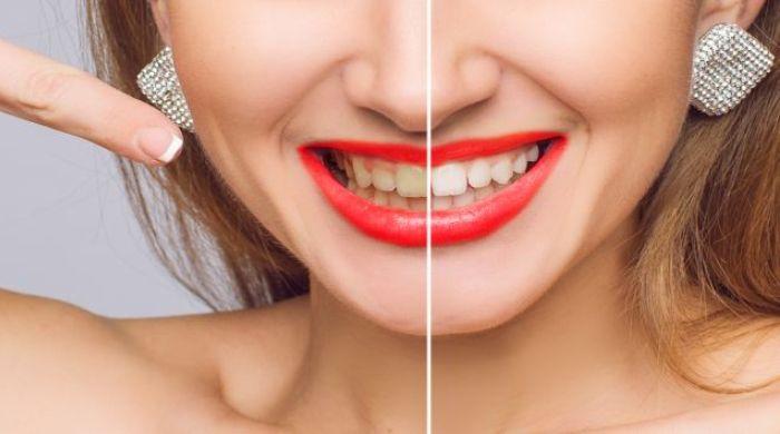 Bikin Gigi Kamu Putih Instan dengan Bahan Alami Ini 0905d62e12