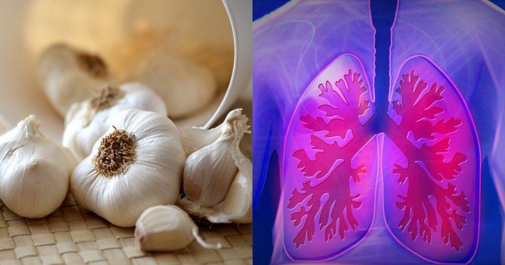Konsumsi 3 Siung Bawang Putih Sehari Cegah Risiko Kanker Paru Paru Semua Halaman Nakita