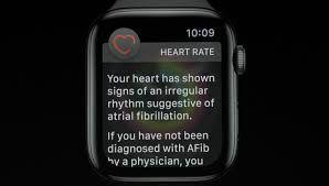 Tak Disangka, Apple Watch Selamatkan Pria ini dari Penyakit Berbahaya