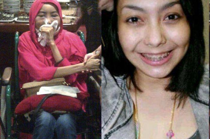 Perbedaan Sariawan Dan Kanker Mulut - Kecil