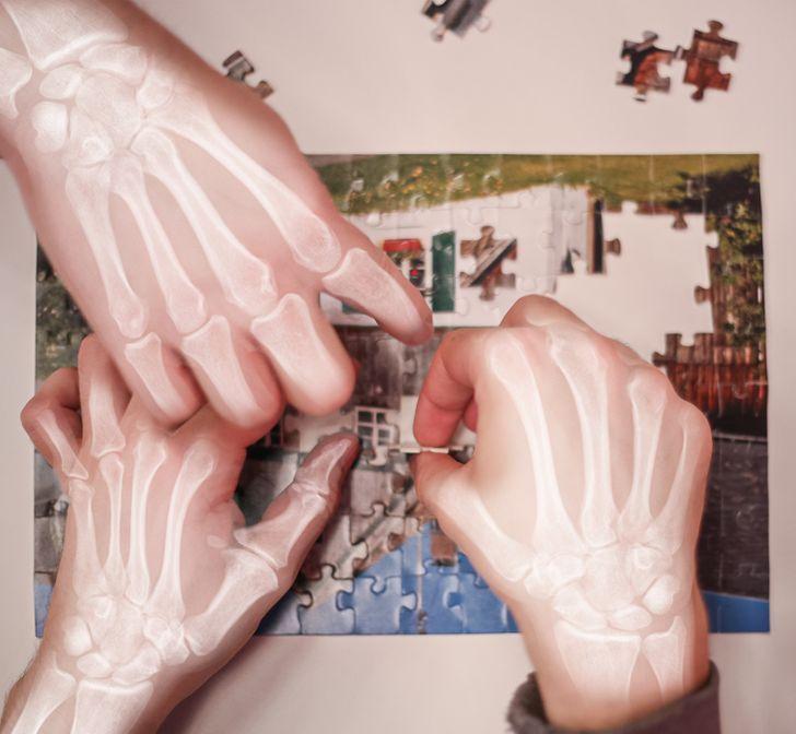 Ilustrasi tulang di tangan