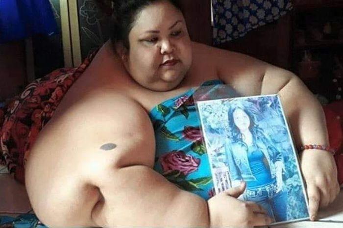 Titi Wati perempuan yang mempunyai berat badan 350 Kg
