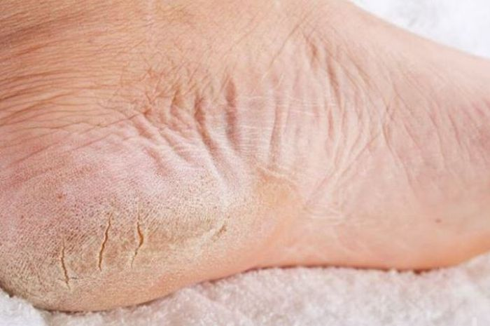 Atasi kulit kaki pecah-pecah dengan cara mudah di rumah! (Nakita.ID)