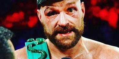 Tyson Fury Ketagihan WWE, Klaim Bakal Tumbangkan Brock Lesnar dalam 30 Detik