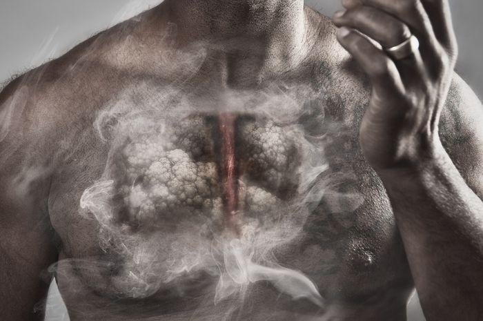Inlah beberapa hal dapat dilakukan agar terhindar dari risiko tumbuhnya sel kanker paru.