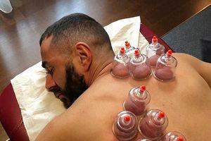 Terapi Bekam Jadi Solusi Karim Benzema Pulihkan Kebugaran Fisik