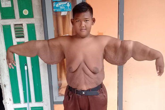 Arya Permana, bocah obesitas yang viral kini berbobot 90 kg